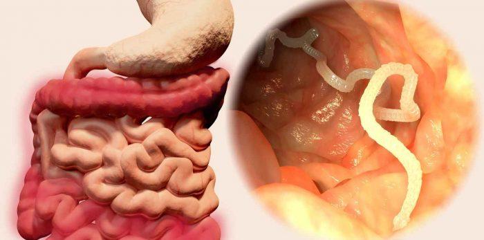 паразиты в организме у человека