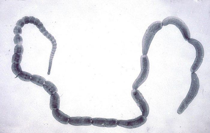 круглый гельминт анкилостомид