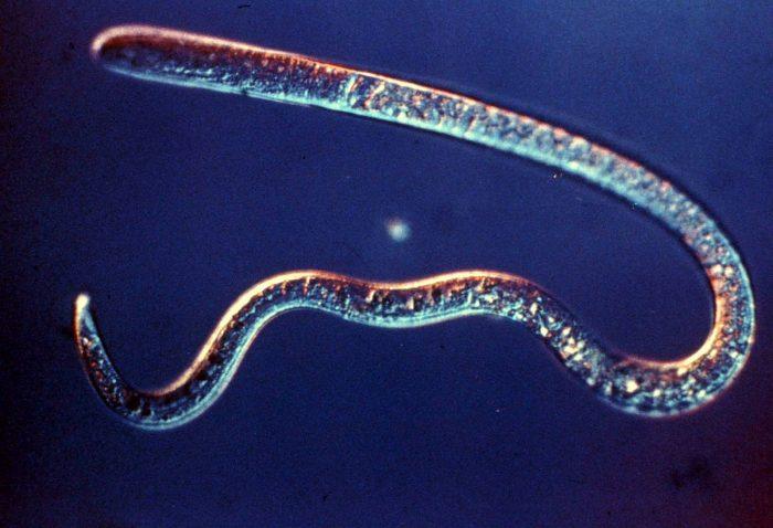 паразиты под названием трихинелла