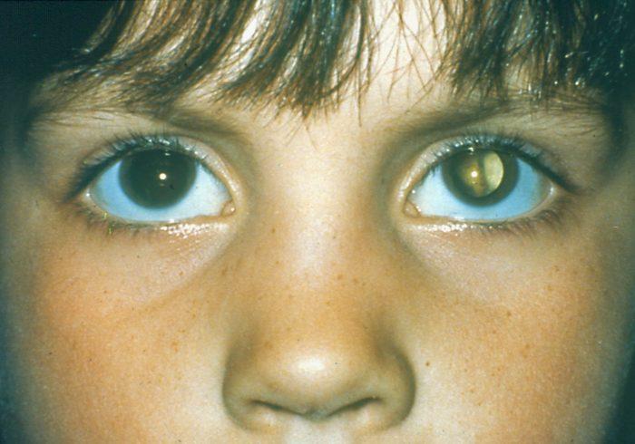 косоглазие и частичная потеря зрения