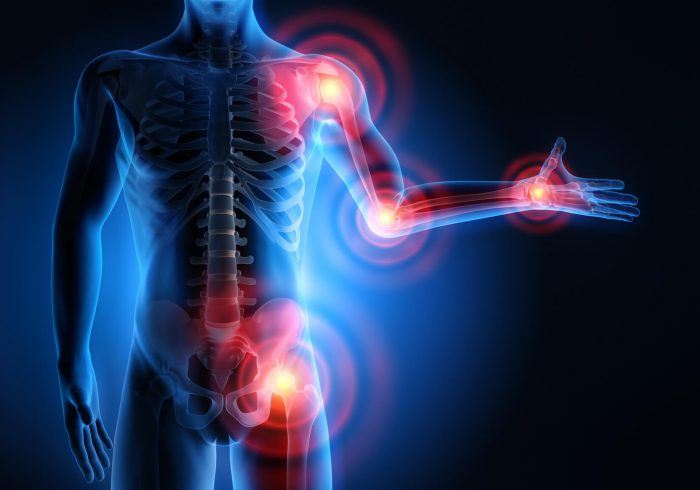 болевой синдром в суставах и мышцах