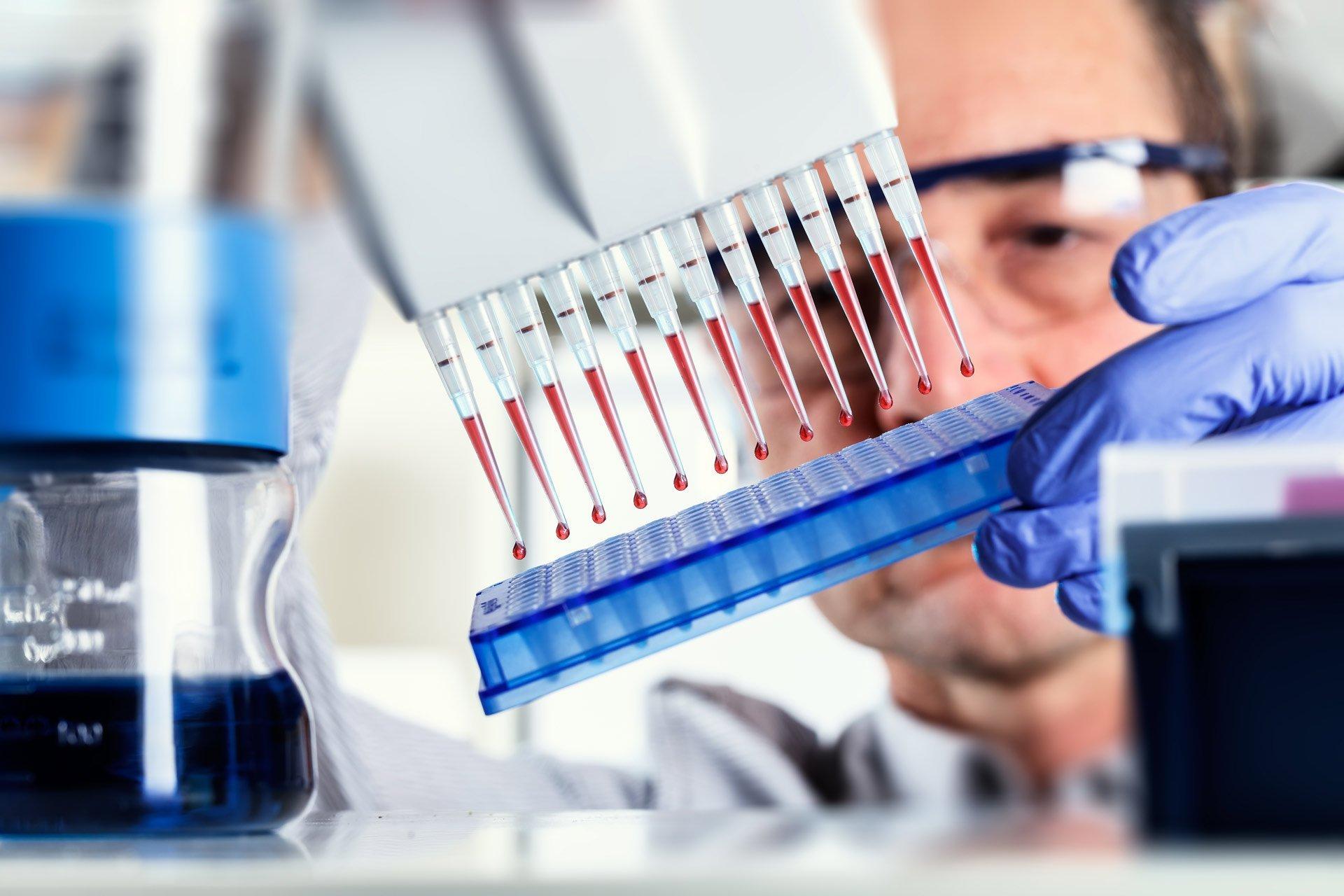 Анализ крови на описторхоз подготовка процедура расшифровка и лечение паразитарного заболевания
