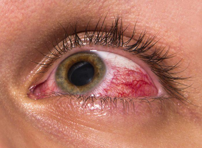 поражение глаз при тениозе