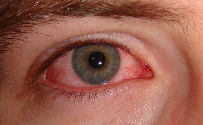 глазной дирофиляриоз