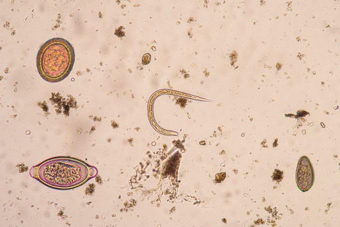 личиночная стадия нематоды
