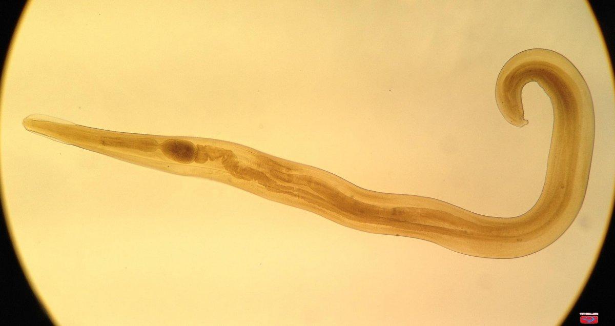 Заражение энтеробиозом острицы чаще всего возможно через — parazit24