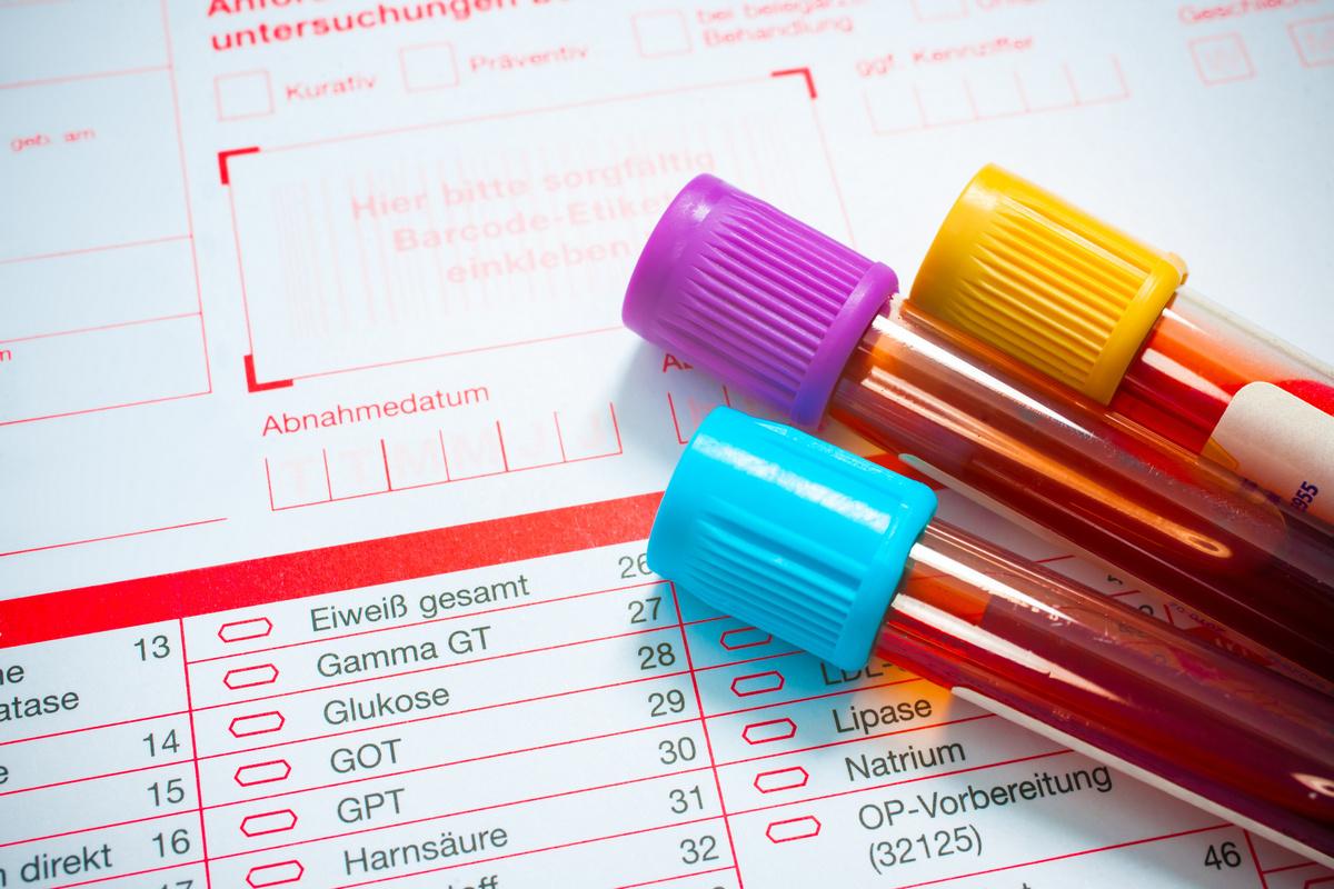 Анализ крови на выявление паразитов