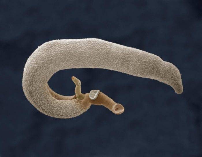 шистосомы повышают вероятность развития гепатита