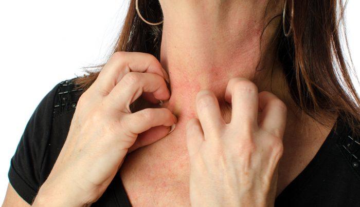 кожные реакции при паразитарной инфекции