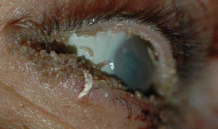 круглый глист в глазах человека