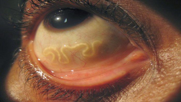 черви могут проникать в глазное яблоко